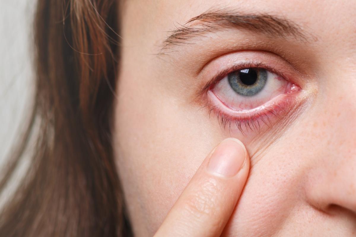 mulher com vermelhidão nos olhos